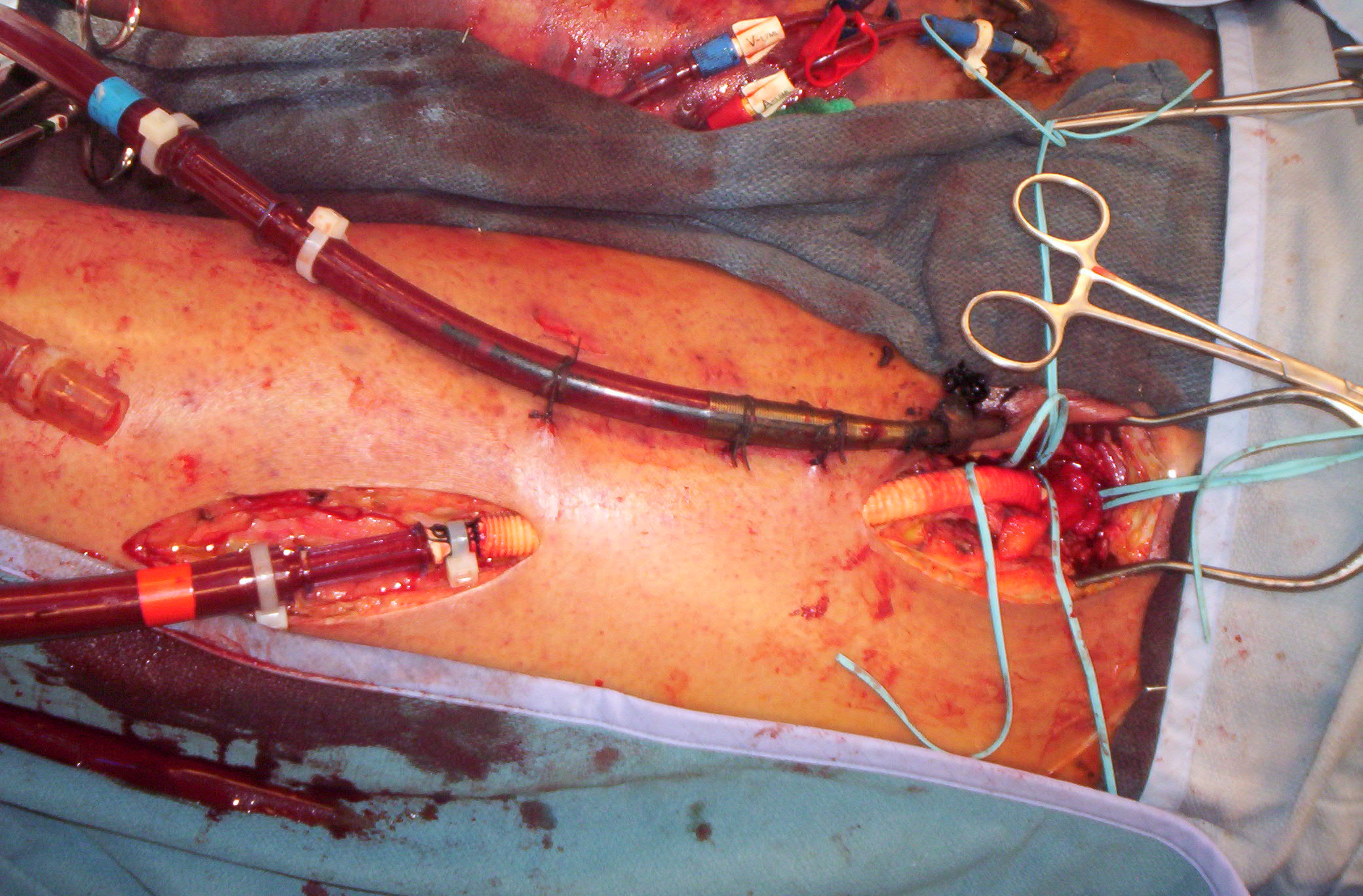 Thoughts from a Clinician:ECMO in Out Of Hospital Cardiac Arrest!
